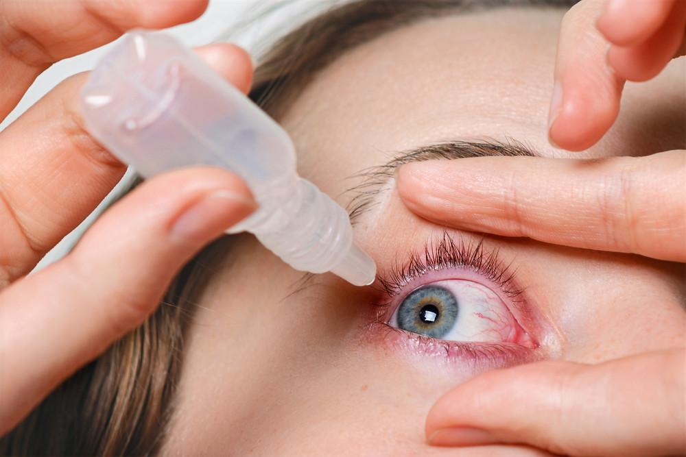 Mujer aplicándose una lágrima artifical o colirio para la sequedad ocular