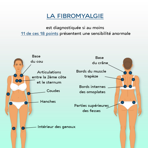 points douloureux de la fibromyalgie