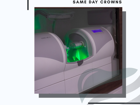 The Benefits Of Same Day Crowns!