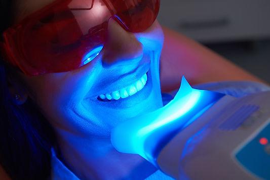 Teeth Whitening Same Day Crowns.jpeg
