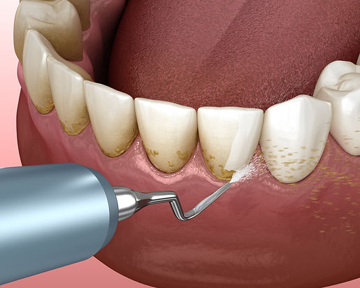 Tooth Cleanings San Marcos Ca.jpeg