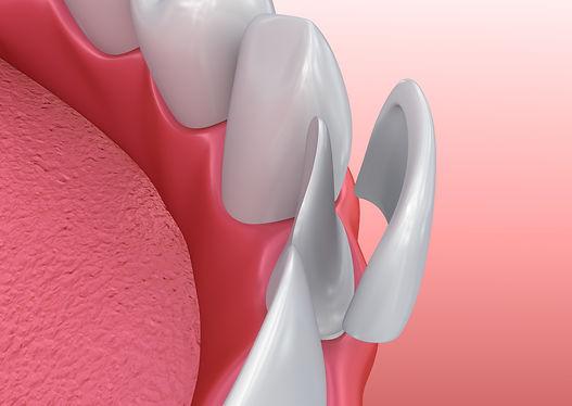Dental Veneers San Marcos Ca.jpeg