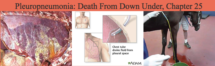 Plueropneumonia