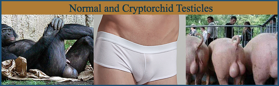 Cryptorchid Testicles