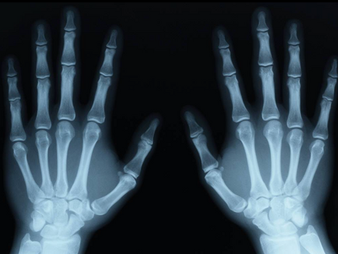 An X-ray machine is a specialized camera