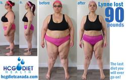 Lynne hcg diet.jpg
