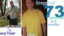 Gregg -73b hCG Diet Canada.jpg