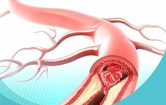 sbr-arterite.jpg