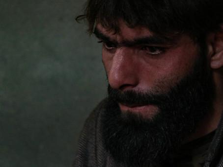 Kashmir's Pellet-Gun Victims Struggle To Be Suitable Grooms