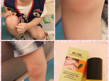 Cherrie Chung - 小蘭:傷口護理系列
