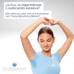 Bótox para la sudoración excesiva o hiperhidrosis
