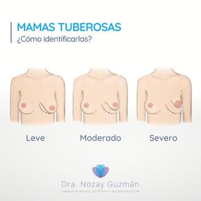 Mamas Tuberosas: ¿Cómo identificarlas?