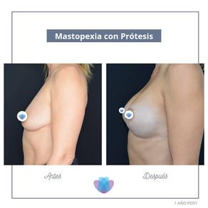 ¿La Mastopexia se debe hacer siempre con implantes?