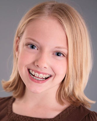 young girl with clear brackets on upper teeth & metal braces on lower teeth