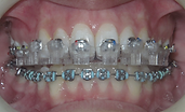 transfer tray & brackets on patient's upper teeth
