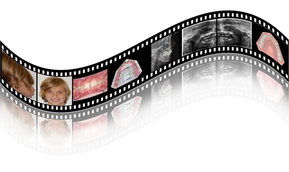 Import photos, xrays, & 3D models for easy access when ordering lab services including clear aligners, IDB, & 3D printing.