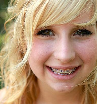 teen girl with metal braces