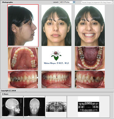 Ortho Share 3D offers ABO & other layouts for patient photos, along with your practice name & logo, for keeping orthodontic records together in one place.