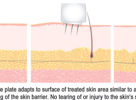 Medical Microneedling