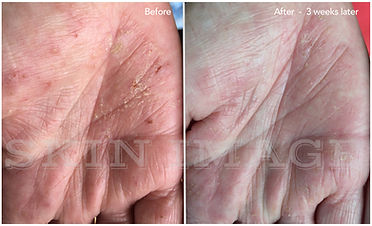 Simone Hands Before After FB_smv02.jpg