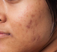 pigmentation from acne scars_sm.jpg