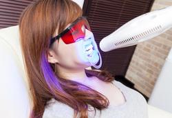那珂川の歯のセルフホワイトニング方法写真