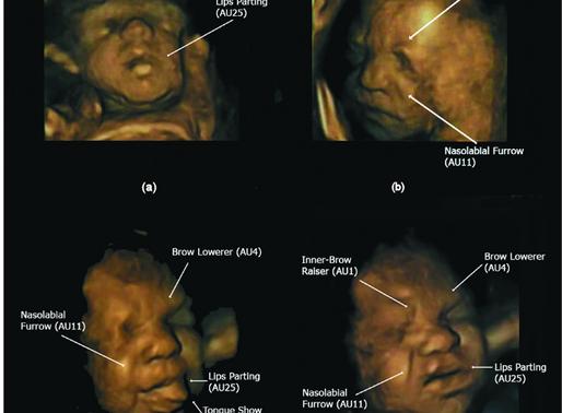 Observing foetal behaviour in the womb; A window into development