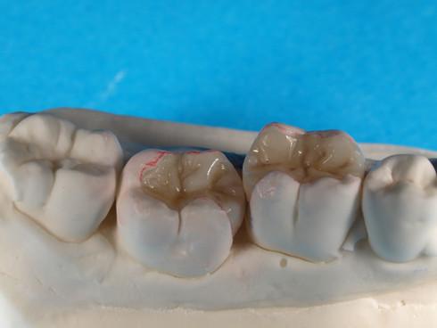 Dentisti Putignano Protesi