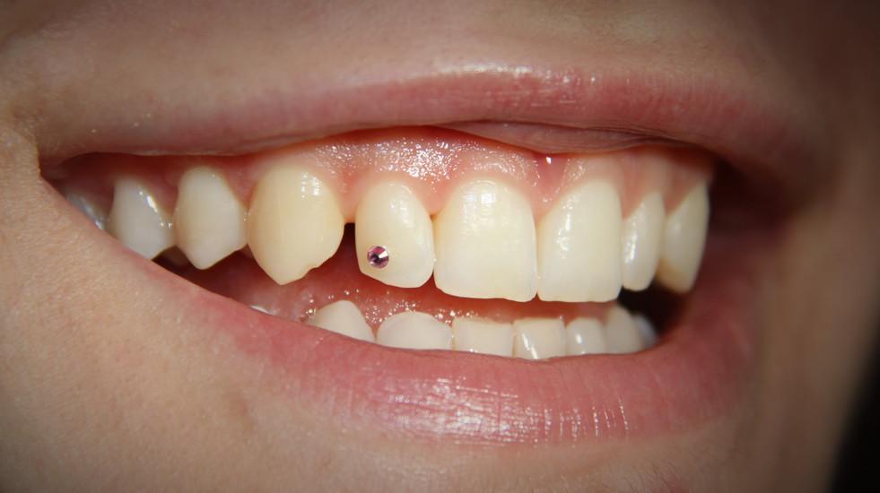 Dentisti Putignano Conservativa