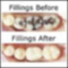 white-fillings.jpg
