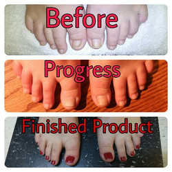 #latepost #finishedproduct ...From a damaged toenail to a new one..