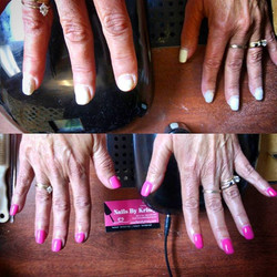 This is the same clients hands.... 5 weeks later..