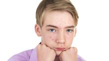 Un remède naturel contre l'acné?