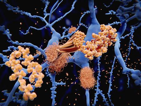 Alzheimer's disease: the amyloid-beta pe