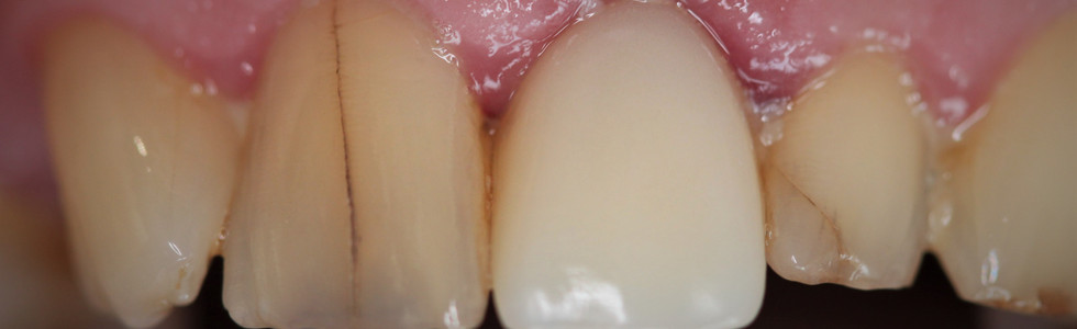 Dental Link immediate temporary implant restoration