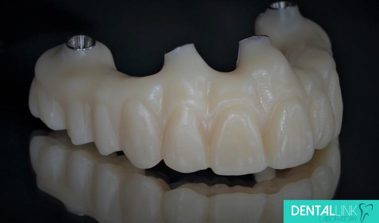 Dental Link All-On-4 monolithic zirconia