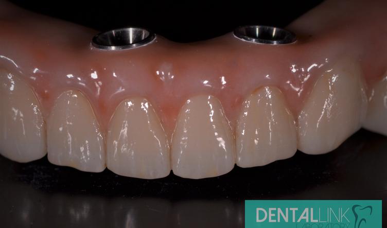 Dental Link All-On-4