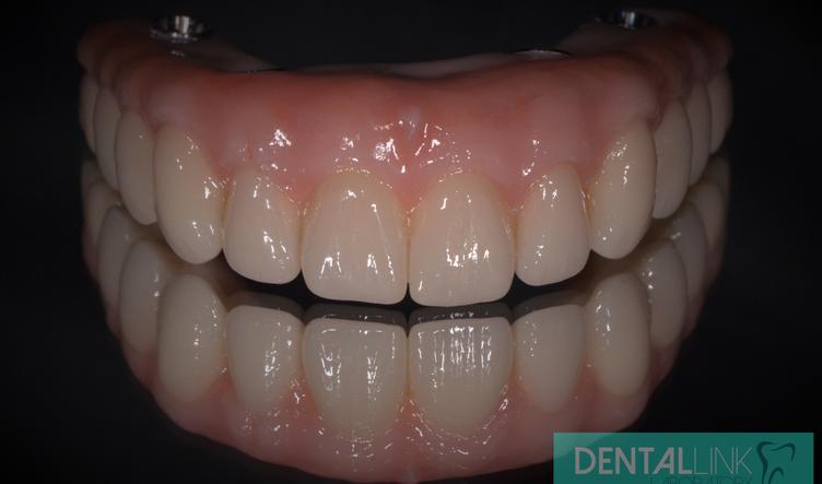 Dental Link All-On-4.png