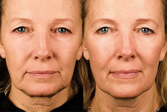 Radio Frequency Skin Tightening Therapy