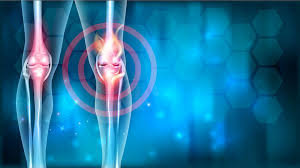 Osteoarthritis Pain Relief Therapy