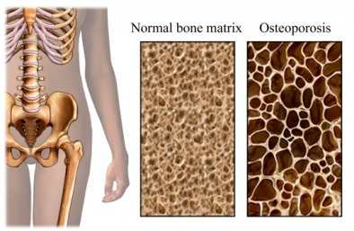 Osteoporosis Therapy
