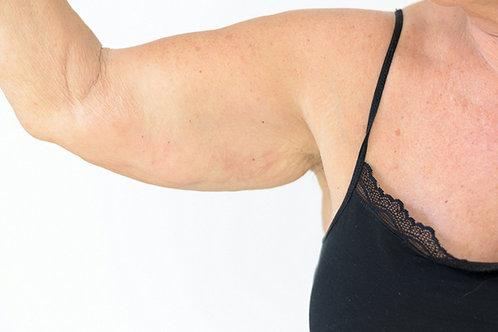 Cryo Arm Toning Fat Freezing Therapy