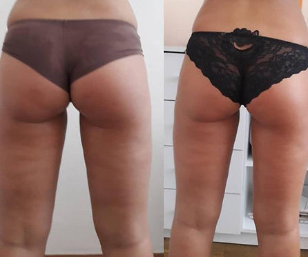 Buttocks Firming & Toning