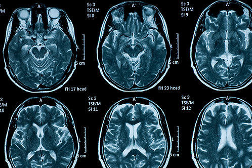 Mild Traumatic Brain Injury Therapy