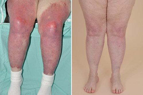 Dermatomyositis & Polymyositis Muscle Therapy