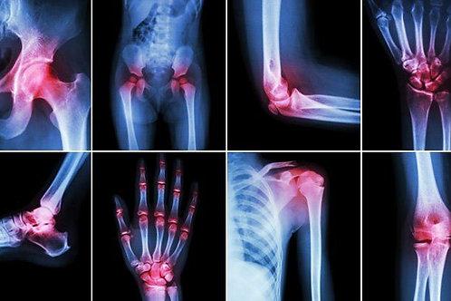 Rheumatoid Arthritis Pan Reduction