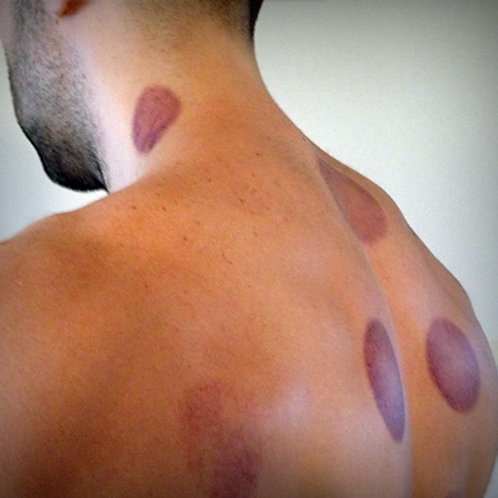 Vacuum Cupping Pain Relief Therapy