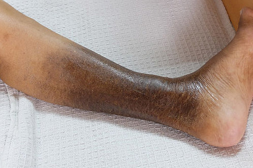 Venous Leg Ulcer Management Pressotherapy Massage Therapy