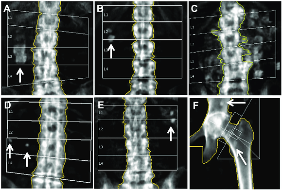 Lumbar Spine Bone Density Therapy