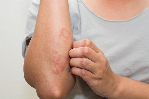 Eczema Light Therapy